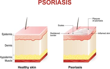 All About Psoriasis